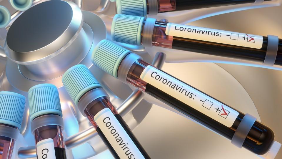 Foto zeigt Zentrifuge mit Blutproben